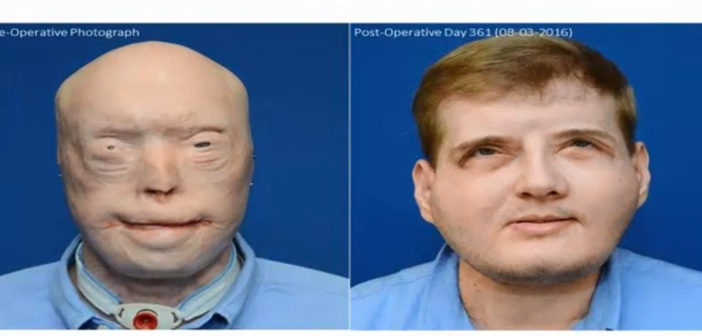 Burned firefighter feels normal again after face transplant